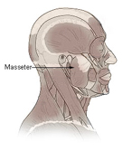 Botox Jaw Reduction NYC (Masseter Botox) targets the masseter muscle to create a jawline that is less square, and more oval-shaped.