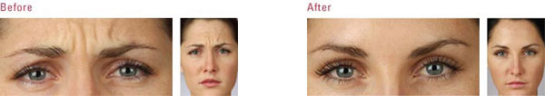A woman before and after NYC Botox treatment for wrinkles