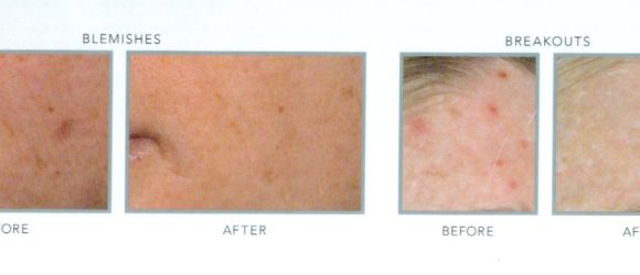 Acne Facial with Blue Light Before & After